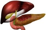 Pancreas Cyst Treatment